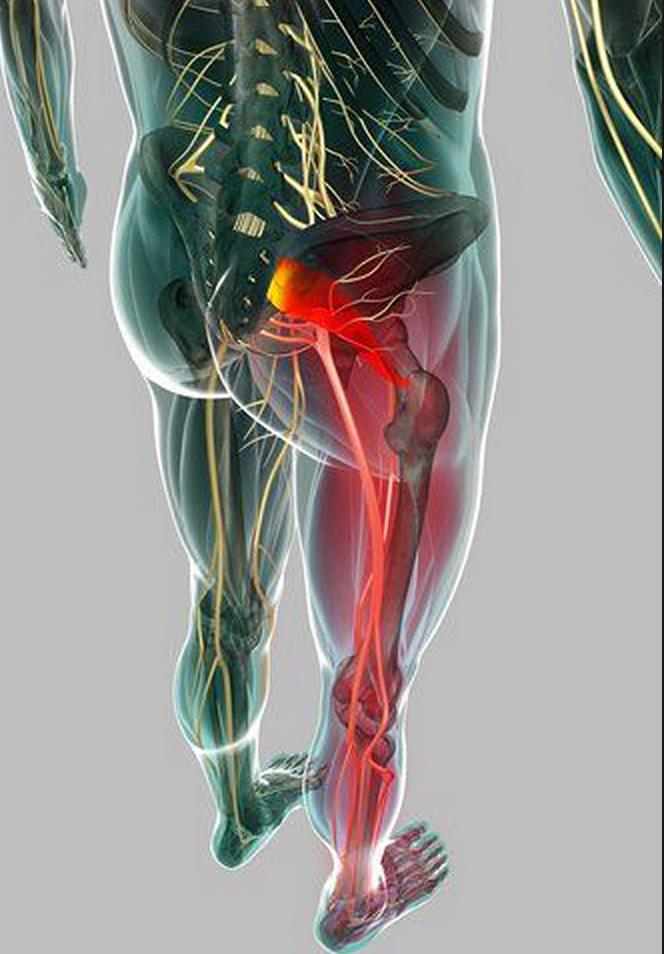 Resultado de imagen para inflamacion del disco lumbar
