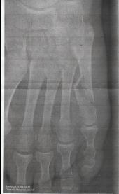 let disloceret fraktur med diastase svt skaftet af 5th metatarsal