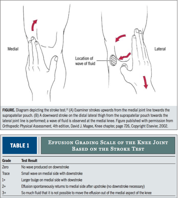 Clinical monitoring of knee joint effusionswelling using measuring an error occurred ccuart